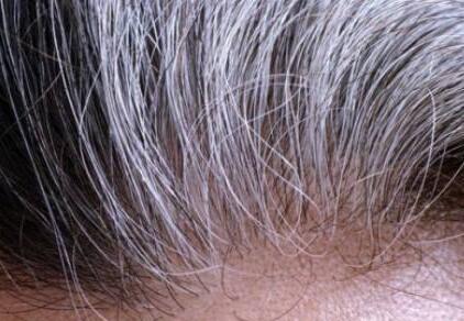 白头发会越拔长得越多吗?蚂蚁庄园8月12日问题答案